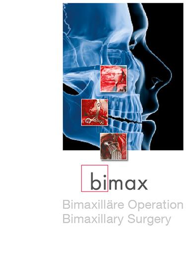 bimax - Bimaxilläre Operation